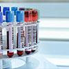 Google invente les prises de sang sans aiguilles